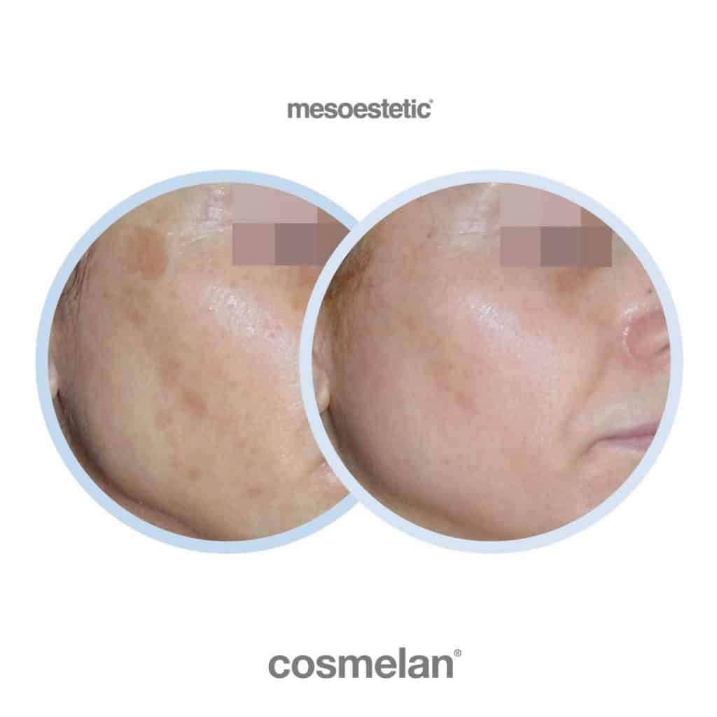 cosmelan before after