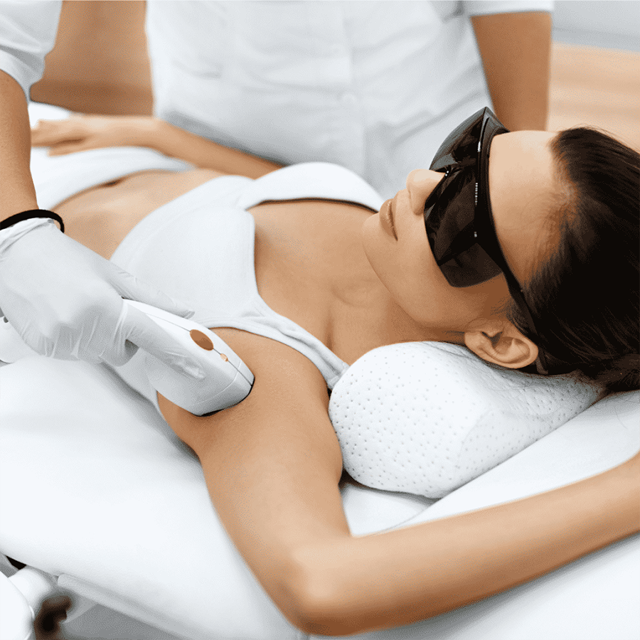 IPL hair removal perth