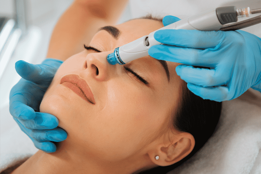 hydrabrasion facial perth