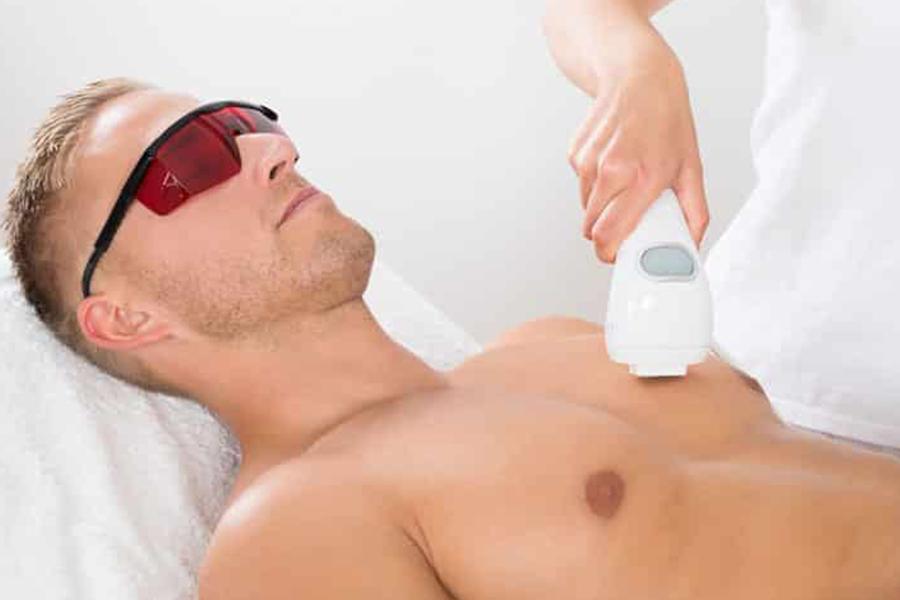 laser hair removal men perth