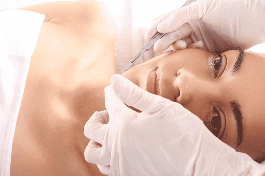 perth epiblading