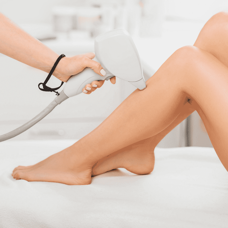 perth ipl hair removal