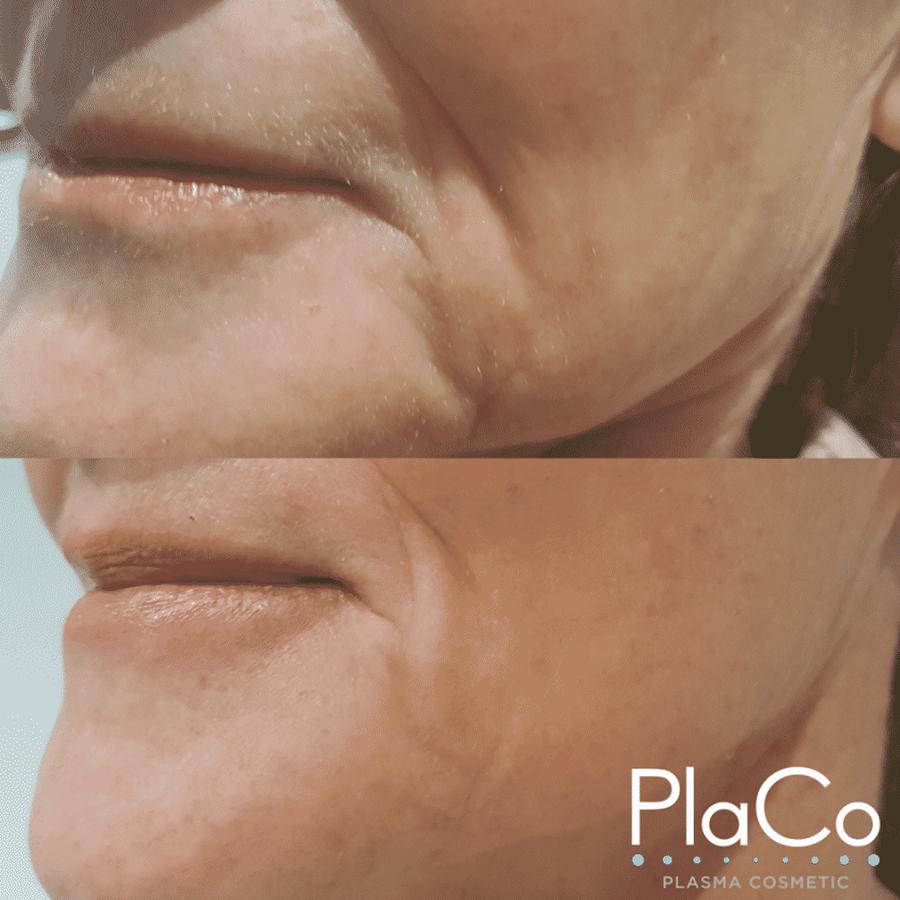 perth plasma skin tightening